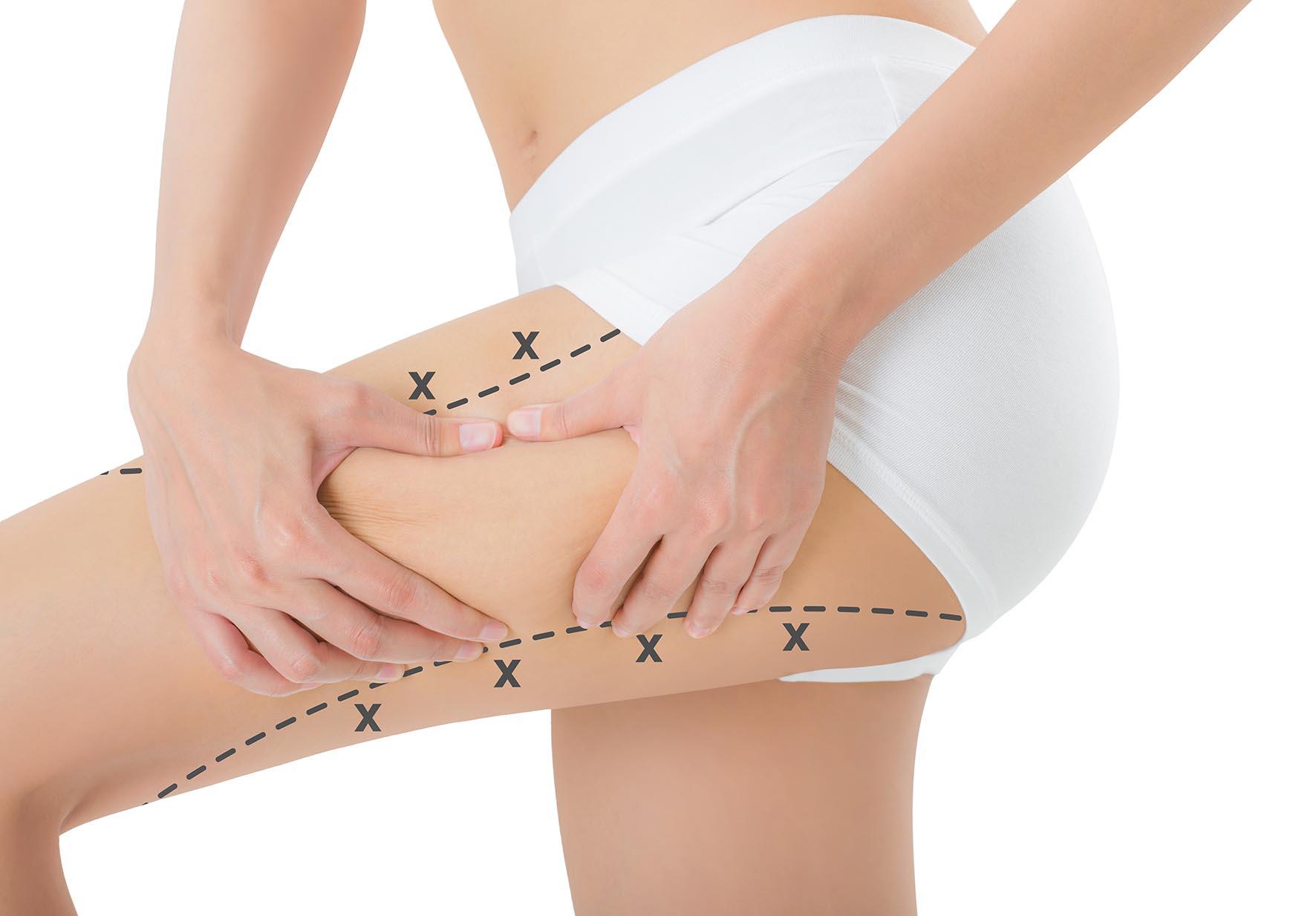 Lazer Liposuction İle Fazla Yağları Aldırarak Vücuda Şekil Verin